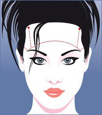 forehead browlift